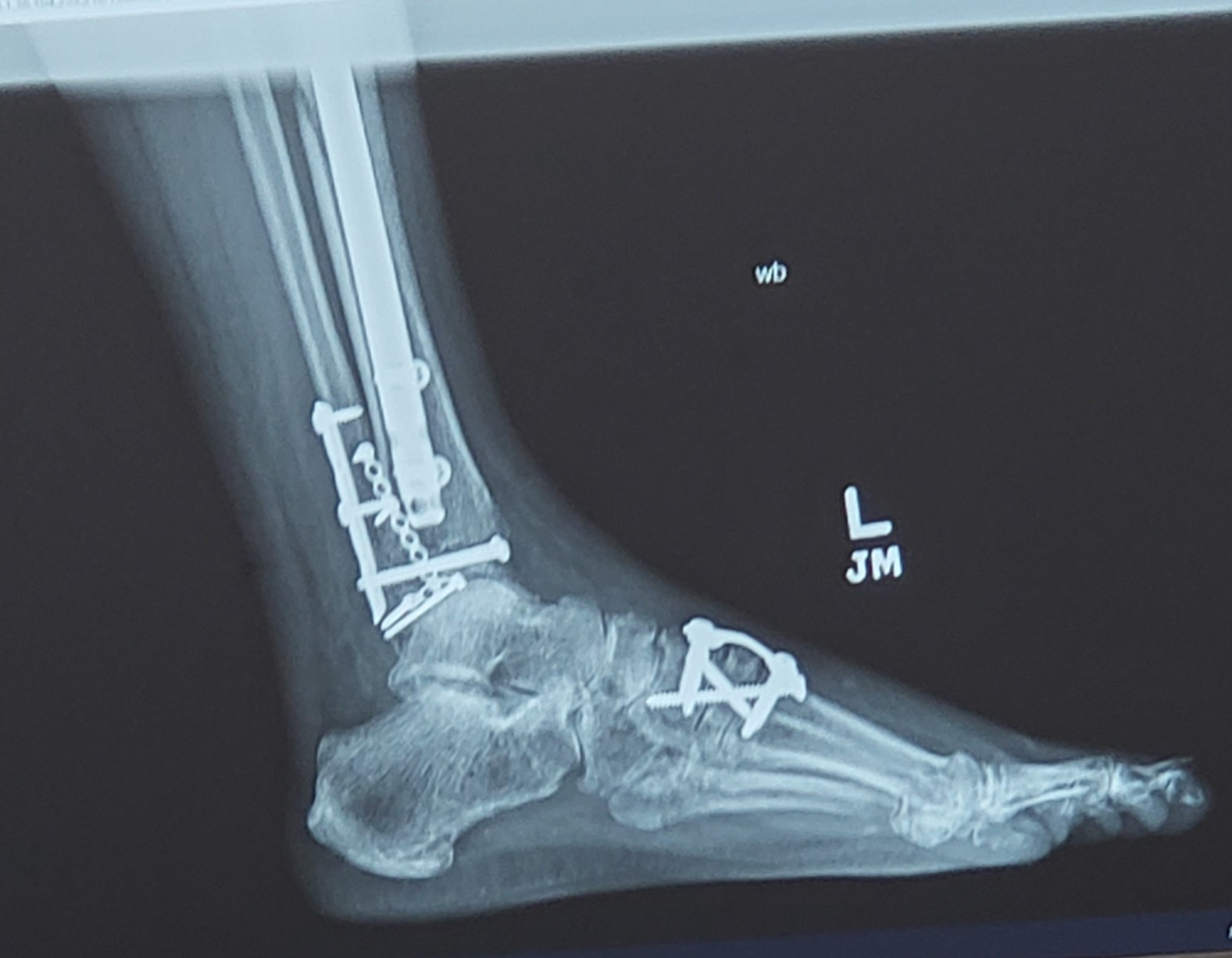 X-ray of patient's foot with screws and hardware